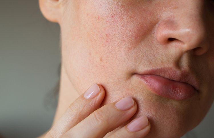 Vákuový čistič pórov je pomocník pri bezbolestnom odstraňovaní pórov, vyrážok a akné z citlivej pleti