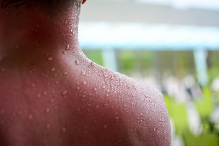 Vplyv saunovania na pokožku